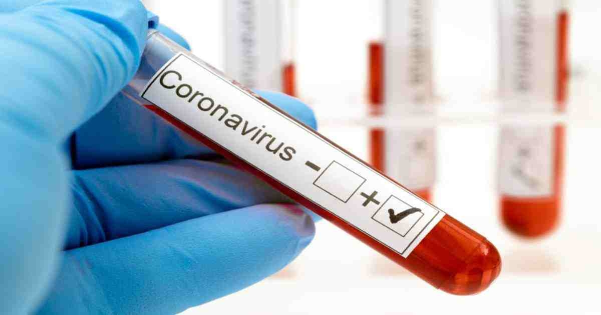 Coronavirus: 20 cops among 30 infected in Natore