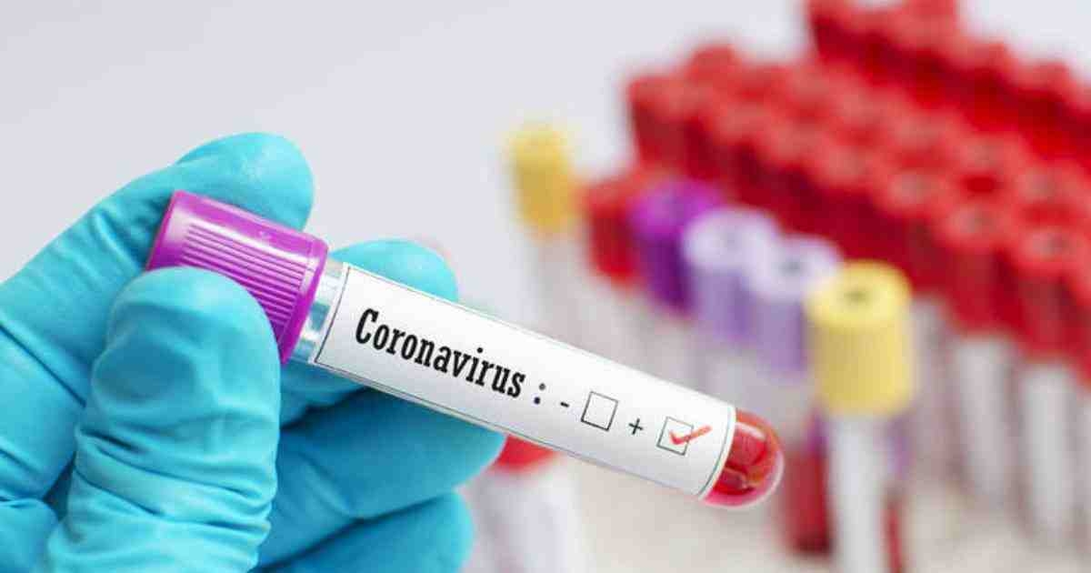 16 more found infected with coronavirus in Kishoreganj