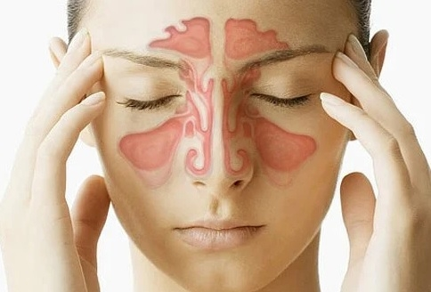 Homeopathic remedies to cure sinusitis