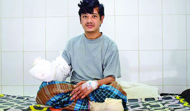 'Tree man' Abul regains hands after groundbreaking surgery