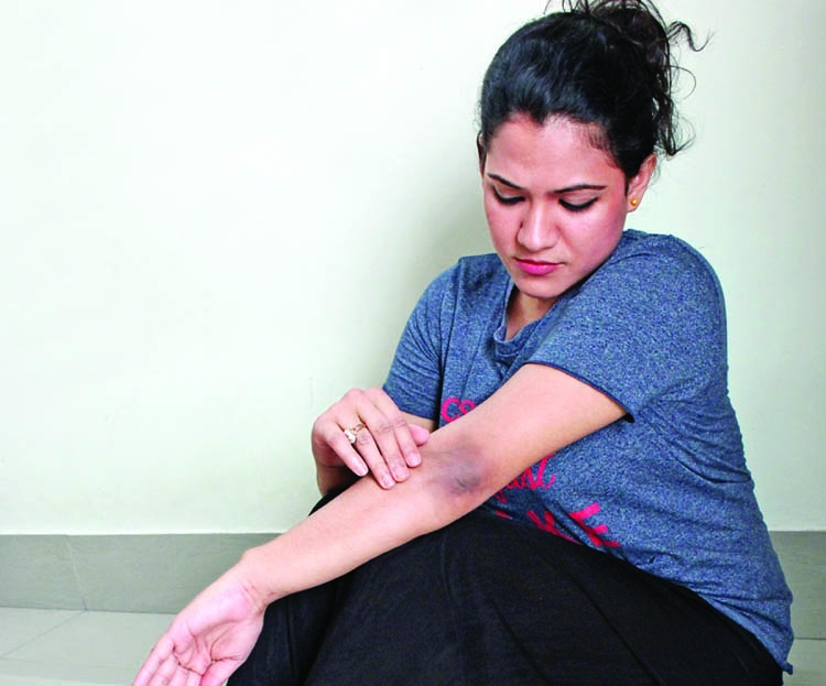 How to keep spotless ankle, knee and elbow
