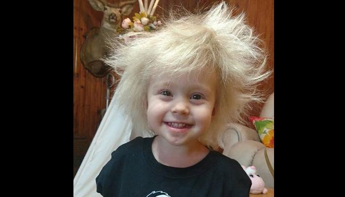 [WATCH] Meet this toddler girl with Albert Einstein hair
