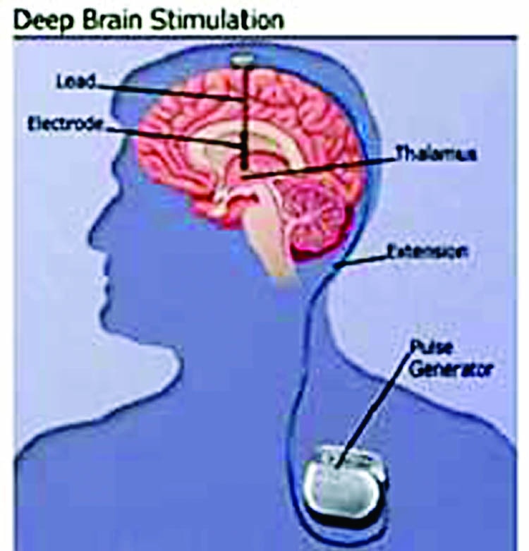 deep brain stimulation Deep brain stimulation (dbs) is a surgery where doctors put wires that can carry corrective electric signals inside a patient's brain electronic equipment located.