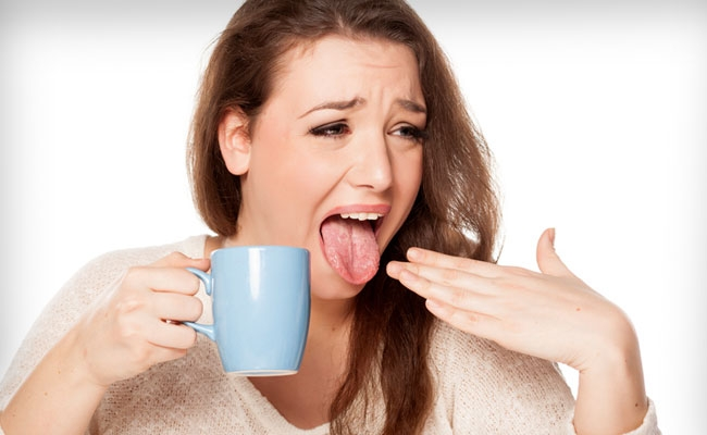 5 Quick remedies to get rid of burnt tongue
