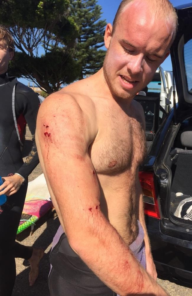 UK doctor 'punches shark' in surfing scare