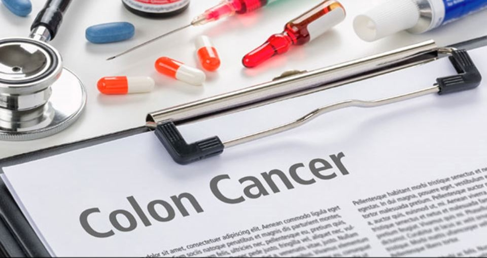 Certain iron supplements can develop colon cancer: Study
