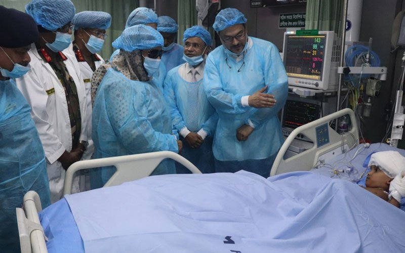 PM visits separated conjoined twins at CMH