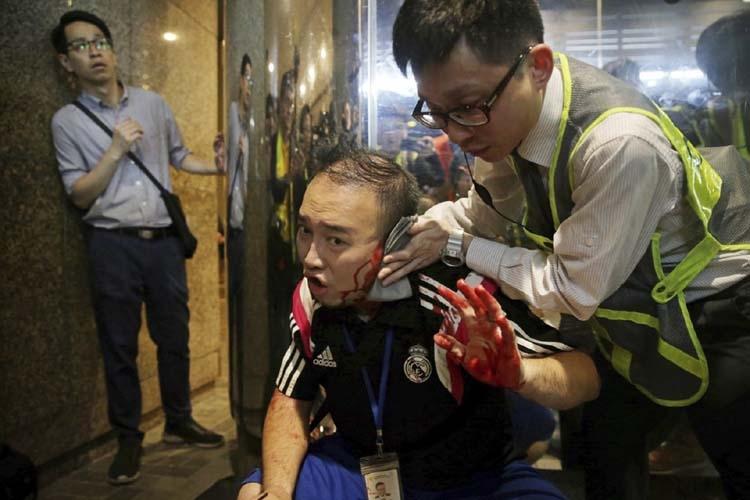 HK police arrest man in knife attack